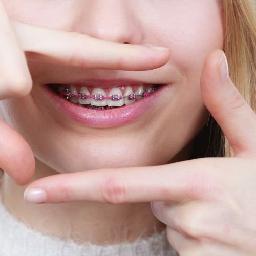 Orthodontist in Stamford CT