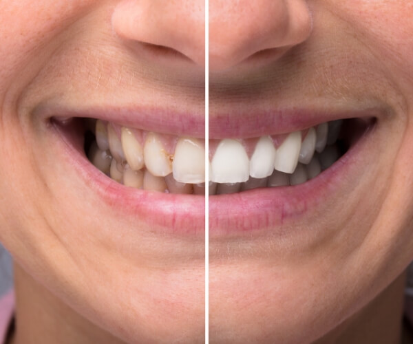 cosmetic dentistry - Cosmetic Dentistry