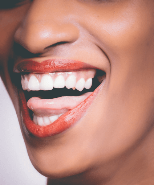 Teeth Whitening in Stamford CT